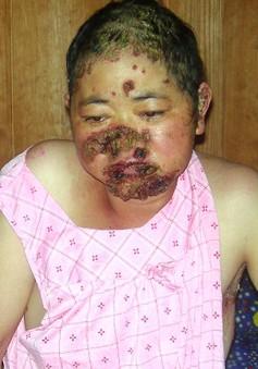 Xin cứu một phụ nữ mắc bệnh lở loét đầy mặt