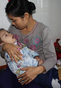Bị rối loạn chuyển hóa bẩm sinh, tính mạng bé 2 tuổi vô cùng nguy kịch