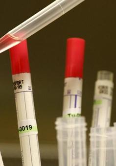 Mỹ gửi thuốc thử nghiệm điều trị Ebola tới Liberia
