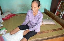 Đi thăm con trai bị tâm thần, mẹ gặp tai nạn phải cưa bỏ 1 chân