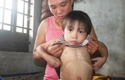 Thiếu 80 triệu đồng để thay khớp, bé gái 4 tuổi có nguy cơ bị bại liệt