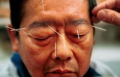 Y học cổ truyền Trung Quốc được áp dụng để điều trị trầm cảm tại Mỹ