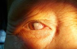 Sợ đau không đi khám, người phụ nữ để mộng bò qua cả đồng tử mắt