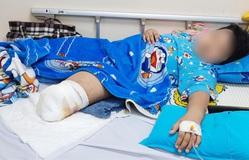 Cứu bé 9 tuổi phải cắt cụt chân do tai nạn