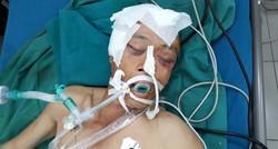 Tìm người thân cho bệnh nhân đa chấn thương do tai nạn giao thông