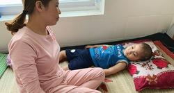 Hoàn cảnh khó khăn của bé trai 6 tuổi trải qua 8 lần mổ não vì não úng thủy