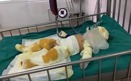 Khí gas rò rỉ bốc cháy, gia đình 3 người bỏng nặng
