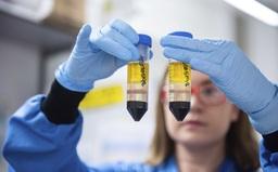 Astrazeneca có thể thử nghiệm lại vaccine ngừa COVID-19