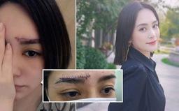 Chung Hân Đồng khoe vết sẹo dài ngoằng trên trán, khán giả e ngại