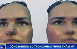 Hình dung khuôn mặt sau phẫu thuật thẩm mỹ qua công nghệ in 3D
