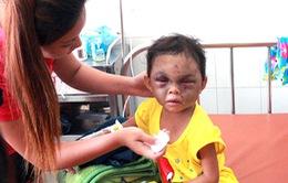Tạm giữ hình sự bố mẹ của bé gái 4 tuổi bị ngược đãi dã man