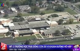 Mỹ đóng cửa 3 trường học do vi khuẩn Legionella