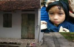 Sức khỏe bé gái bị hành hạ ở chùa Thiên Tâm tiến triển tốt