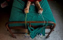 Hàng nghìn nạn nhân vụđộng đất tạiNepal có thểtàn tật suốt đời