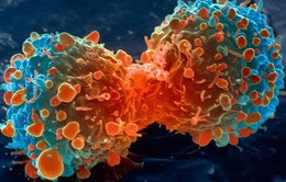 Đã có thiết bị lọc tế bào ung thư