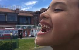 Ấn tượng màn nhổ răng đầu tiên trên thế giới bằng… máy bay không người lái
