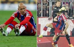 Tin dữ cho Bayern: Robben nghỉ hết mùa, Lewandowski vỡ xương quai hàm