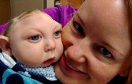 Nghị lực sống phi thường của em bé chỉ có nửa hộp sọ
