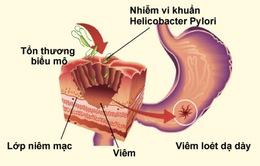 6 điều quan trọng về viêm loét dạ dày ai cũng nên biết