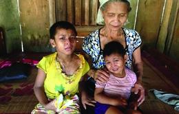 Phú Thọ: Xác định bệnh lạ ở trẻ em là khô da sắc tố