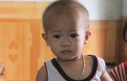 Xót thương bé 18 tháng mắc u 2 thận hiếm gặp