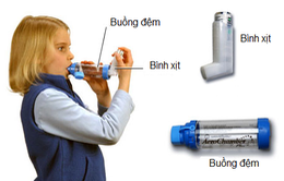 6 bước sử dụng bình xịt cắt cơn hen phế quản tại nhà