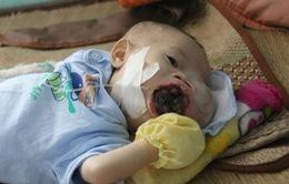 Sự sống mong manh của cháu bé 5 tháng tuổi bị u máu quai hàm