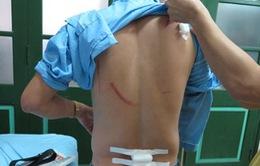 Nhà báo bị côn đồ truy sát giữa đường ở Thái Nguyên