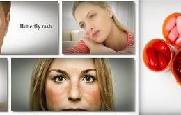 Một số lưu ý trong điều trị bệnh Lupus ban đỏ hệ thống