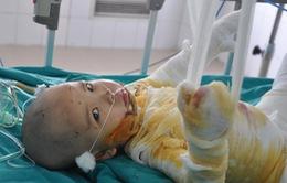 Bị chảo mỡ nóng đổ vào người, bé 2 tuổi bỏng 75% cơ thể