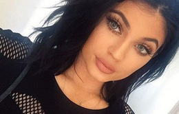 Giới trẻ Mỹ phát cuồng vì đôi môi mọng của cô em nhà Kardashian