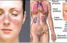 Bệnh nhân Lupus ban đỏ đa phần là nữ