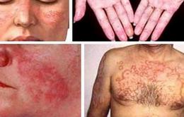 Nhận diện căn bệnh Lupus ban đỏ hệ thống