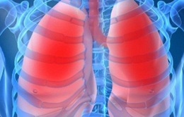 Thực phẩm giúp phòng bệnh phổi tắc nghẽn mãn tính