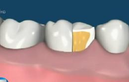 Cần lưu ý chế độ ăn uống và khám định kỳ khi bọc răng sứ