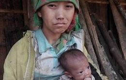 Xót xa hoàn cảnh bé 3 tháng tuổi da bọc xương vì đói sữa