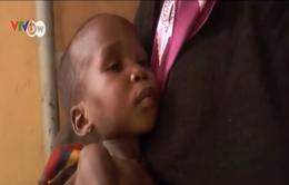 Nhiều trẻ thoát khỏi tay Boko Haram bị suy dinh dưỡng trầm trọng