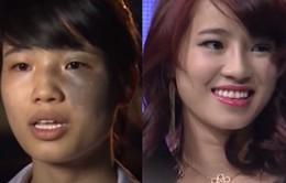 Change Life - Thay đổi cuộc sống: Nỗi buồn của cô gái có vết chàm lớn trên mặt