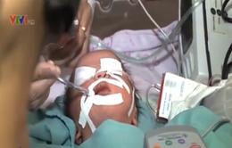 TP.HCM: Cứu sống trẻ sơ sinh bị dị tật tim bẩm sinh