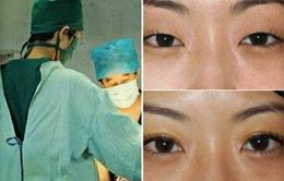 """Phụ nữ Trung Quốc không ngại """"đổ"""" tiền cho phẫu thuật thẩm mỹ"""