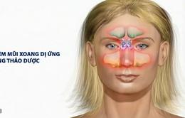 7 lưu ý đối với bệnh viêm mũi xoang dị ứng