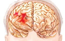 Nhận biết và xử trí cấp cứu xuất huyết não