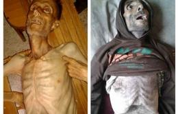 """Madaya trở thành """"địa ngục trần gian"""" trong cuộc chiến vây hãm tại Syria"""