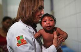 Thêm 2 trường hợp mắc bệnh đầu nhỏ tại Colombia
