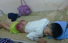 Thái Nguyên: Bố đánh con trai 13 tuổi bầm mông, rướm máu phải nhập viện