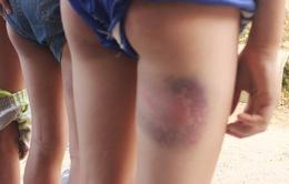 TT - Huế: 6 học sinh bị giáo viên đánh bầm tím