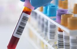 Xét nghiệm máu có thể phát hiện sớm bệnh Alzheimer
