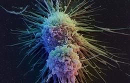 Phát triển phương pháp điều trị ung thư mới ở Mỹ