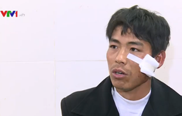 Vụ xe bồn đâm xe khách ở Hòa Bình: Nạn nhân kể lại giây phút kinh hoàng