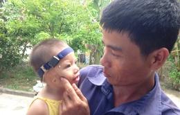 Thương bé 19 tháng tuổi không có vành tai, hở hàm ếch